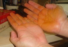 Hands Stained With Dit Da Jo